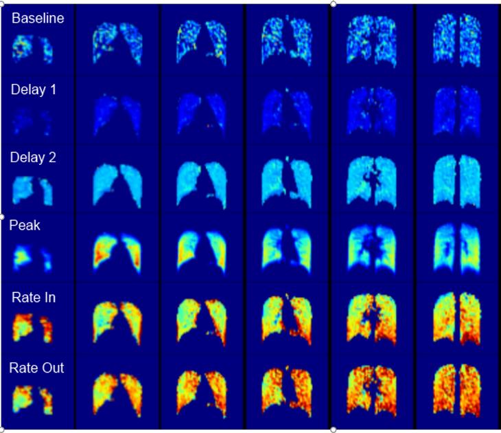 Quantitative lung function maps