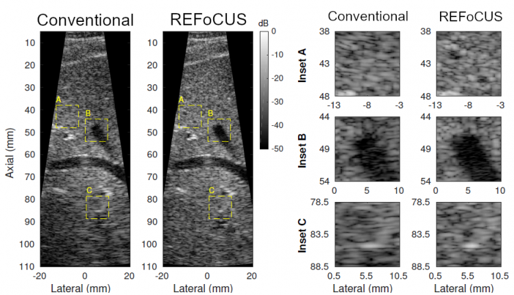 Ultrasound image of target on a speckled background obtained using the invented method