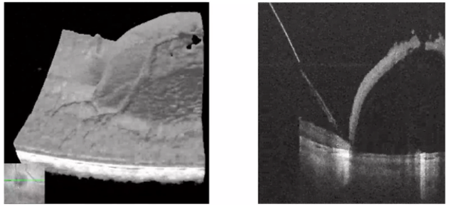 B-scans of a bleb injection. Image provided by authors: Jianwei D. Li, William Raynor, Ananth Sastry M.D., Al-Hafeez Dhalla, Cynthia Toth M.D., Christian Viehland, Lejla Vajzovic M.D., Joseph A. Izatt.